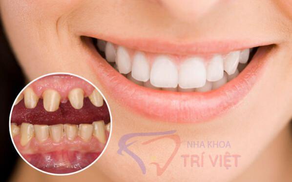 Dịch vụ bọc răng sứ giá rẻ tại tphcm
